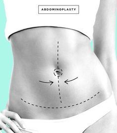 25 Best Tummy Tuck Journey Images In 2015 Tummy Tuck