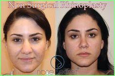Non Surgical Nose Job For Wide Nose - NoseSecret comprises of a couple of bended. Non-Surgical Nose Job für breite Nase - NoseSecret . Thin Nose, Wide Nose, Straight Nose, Nose Fillers, Botox Fillers, Facial Fillers, Make Nose Smaller, Nose Job Cost, Bulbous Nose