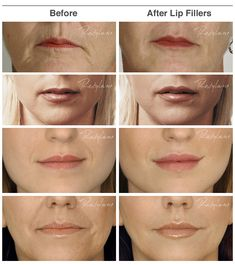 before_after_lip_fillers.jpg (640×721)