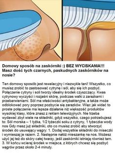 Zaskórniaki to zło Beauty Care, Diy Beauty, Beauty Skin, Health And Beauty, Beauty Secrets, Face Care, Body Care, Skin Care, Beauty Hacks Nails