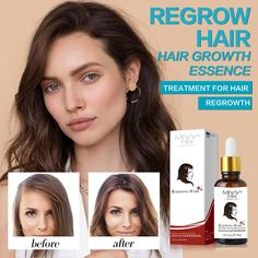 Hair Growth Treatment Oil Anti Hair Loss Essence Natural Healthy Hair Treatment Fast Thick Hair for Woman Hair Care Products