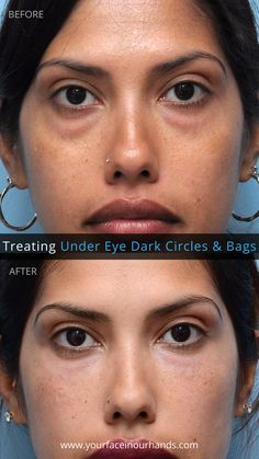 Getting rid of Dark Under Eye Circles and Bags with Dermal Fillers by Dr.  David Mabrie in San Francisco. 4b6a0987d0