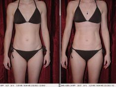 3005c04ff3 i-lipo laser liposuction before and after review photos Tummy Tuck Before  After