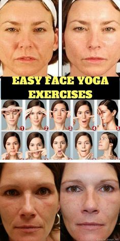 Face Yoga Exercises for a Healthy Glow - Firstly, it's hailed as a non-invasive alternative to Botox and surgery, but how exactly will doing facial exercises help banish fine lines, sagging and wrinkles? - Try these yoga exercises for a healthier face Alternative Zu Botox, Alternative Health, Yoga Fitness, Fitness Foods, Fitness Workouts, Visage Plus Mince, Acne On Nose, Motivation Yoga, Motivation Quotes