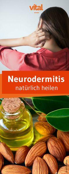 Betroffene der Hautkrankheit Neurodermitis leiden oft ihr Leben lang unter juckender Haut, die sich in Schüben bemerkbar macht. Neben Salben und Cremes können auch diese Hausmittel Linderung verschaffen.