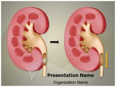 Check out our professionally designed and world class pituitary make a great looking ppt presentation quickly and affordably with our professional nephrolithiasis kidney stones powerpoint template toneelgroepblik Choice Image