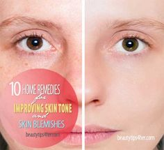 10 Home Remedies for Improving Skin Tone or Skin Blemishes | Beauty and MakeUp Tips