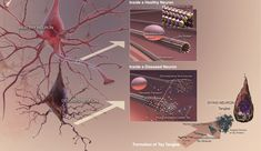 The effects of Tau protein formation