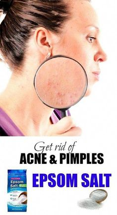 Treat acne with epsom salt #SkinTighteningFace #EpsomSaltCleanse Acne Causes, Acne And Pimples, Acne Scars, Skin Care Regimen, Skin Care Tips, Epsom Salt For Hair, Salt Hair, Epsom Salt Cleanse, Useful Tips