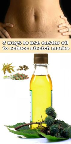 3 ways to use castor oil to reduce stretch marks