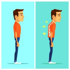 Bad #posture places #stress on structures that don't like to be stressed, uses excess energy and can also lead to discomfort and even pain. For example, craning your head forward (toward a computer screen) stresses your neck muscle and the cervical joints in your #spine.