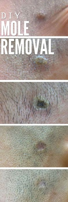 Get rid of ugly moles with apple cider vinegar! More than just a toner for skin, this beauty tip will make moles disapper for good. Step-by-step pictures and an update months later - it stayed off YEARS later for healthy skincare!