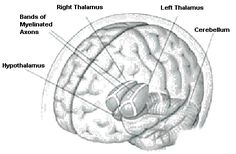 Sagittal section of the brain: Thalamus, Hypothalamus