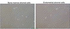 Stromal Cells are ALL connective tissue cells in the Human Body. These cells are most often associated with MSCs Stem Cell Research, Regenerative Medicine, Bone Marrow, Stem Cells