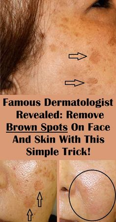 Numerous people find the age spots on their skin a huge problem, as they lower their self-esteem and look unattractive. hacks Famous Dermatologist Revealed: Remove Brown Spots On Face And Skin With This Simple Trick! Beauty Care, Beauty Skin, Health And Beauty, Healthy Beauty, Face Beauty, Brown Spots On Hands, Dark Spots On Face, Facial Brown Spots, Home Beauty Tips