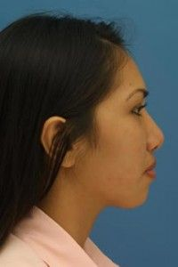 Ethnic Rhinoplasty Welcome to Rhinoplasty Master your guide to Dr Philip J Millers pract Ethnic Rhinoplasty, Rhinoplasty Surgery, Nose Surgery, Rhinoplasty Before And After, Decorating Blogs, Unique, People, Color, York