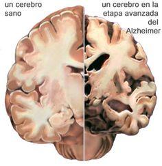 Vive Sana: Dieta para evitar el Alzheimer