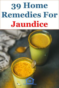 Painless jaundice jaundice pinterest 39 effective home remedies for jaundice forumfinder Choice Image