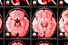Moderate traumatic brain injury (MTBI) is actually a misleading term as there is nothing moderate about an injury to the brain.  In this article, I discuss what is classified as a moderate traumatic brain injury and the clinical symptoms a moderately brain injured patient will present with.