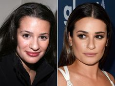 Lea Michele in 2007 (left) and in 2016 (right). Botox Fillers, Lip Fillers, Shay Mitchell Makeup, Straight Eyebrows, Trending Tv Shows, Kylie Jenner Instagram, Subtle Makeup, Full Brows, Lip Injections