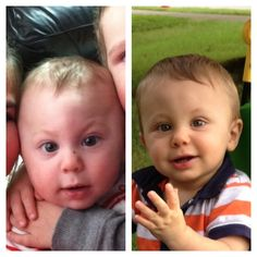 Before - at 6 months and After - at 10 months.  Aidan - born Aug 23, 2012. Surg date March 3, 2013 at Cincinnati Children's Hospital.