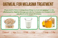 Top 25 Ways On How To Get Rid Of Melasma Fast At Home