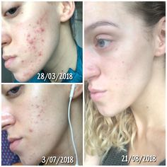 [B&A] Epiduo (dermatica) update Acne Treatments, Perfect Skin, Amp, Beauty Tips