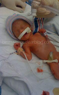 """""""There was no fear"""" {Preemie Cesarean Birth}"""