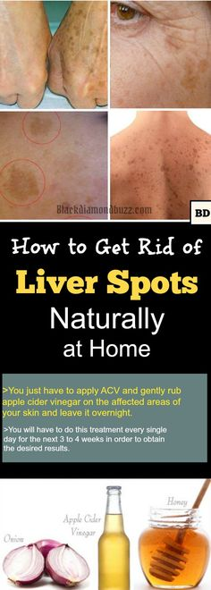 How to Get Rid of Liver Spots Naturally at Home- Liver spots removal tips - Do you have liver spots and are looking to get rid of them, chances are pretty good that you do and do not know it. Liver spots are not actually associated with any type of liver condition, instead, they are more an indication of aging. They also are often referred to as sun spots and they are completely harmless.