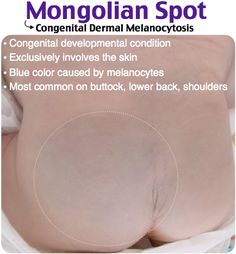 Mongolian Spot: large blue patch is present over the sacrum. Similar patches are present over the bilateral shoulders