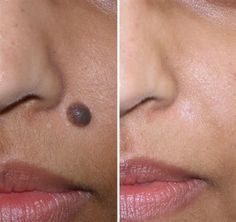 How to Remove a Mole – The 5 Most Unusual Remedies