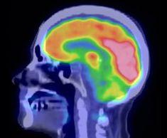 imagen obtenida a través de la medicina nuclear