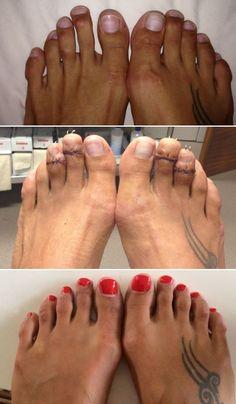 Mega Curioso - Encurtamento de dedos dos pés é a nova moda insana da indústria da beleza