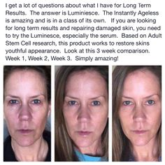 These products are incredible and completely speak for themselves! Jeunesse before and afters.  http://wownowrinkles.jeunesseglobal.com/PersonalCare.aspx?id=1