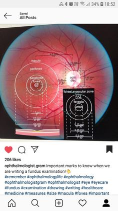Eye Anatomy Diagram, Opthalmic Technician, Medicine Notes, Eye Facts, Medical Terminology, Anatomy And Physiology, Neuroscience, Medical Advice, Optician