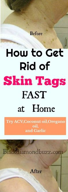 Ever wondered how to remove skin tags? Skin tags are small growths of skin that appear in various parts of your body, due to friction, excessive body weight, or even due to genetic issues, it can also cause by insulin resistance or type 2 diabetes. In oth Acne Treatment At Home, Cystic Acne Treatment, Spot Treatment, Causes Of Skin Tags, Aloe Vera, Autogenic Training, Oregano Oil Benefits, Skin Moles, Health Tips