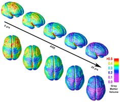 Time-lapse MRI images of human-brain development between ages five and 20 show the growth and then gradual loss of gray matter, which consists of cells that process information. (Red areas contain more gray matter, blue areas less.) Paradoxically, the thinning of gray matter that starts around puberty corresponds to increasing cognitive abilities. This probably reflects improved neural organization, as the brain pares redundant connections and benefits from increases in the white matter…