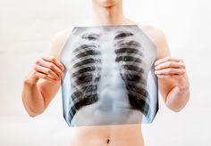 5 byliniek na čistenie pľúc a podporu dýchania