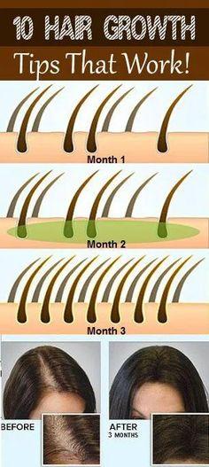 Hair Growth Miracle Serum Biotin Shampoo For Hair Growth B-Complex Fo. , Folliboost Hair Growth Miracle Serum Biotin Shampoo For Hair Growth B-Complex Fo. , Folliboost Hair Growth Miracle Serum Biotin Shampoo For Hair Growth B-Complex Fo. Hair Remedies For Growth, Hair Growth Tips, Hair Loss Remedies, Healthy Hair Growth, Fast Hair Growth, Natural Hair Growth Products, Best Hair Products, Facial Products, How To Grow Natural Hair