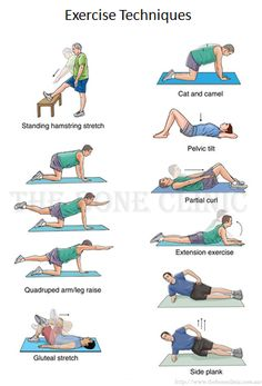 Exercise for Dowagers Hump