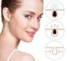– jeśli tak, to wypróbuj tych 5 kremów! — Krok do Zdrowia Inverse Psoriasis, Psoriasis Skin, Psoriasis Remedies, How To Make Eyebrows, Thick Eyebrows, Vicks Vaporub, Egg White For Skin, Freckle Remover, Secura