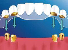 Разновидностью бюгельных протезов являются протезы на телескопических коронках. Они удерживаются на зубе с помощью коронки, состоящей из двух частей. Первая представляет собой металлический колпачок, который надевается на собственный зуб. Вторая - колпачок с параллельными стенками. И, словно складывающаяся подзорная труба, одна коронка плотно «садится» на другую.