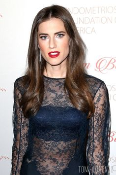 """Girls"" actress Allison Williams // ignore the questionable dress, I'm really loving her hair and I think my hair would do that."