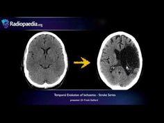 """Stroke Series"" video 4 of 7: Temporal evolution of ischaemic stroke. Presented by Neuroradiologist Dr Frank Gaillard."