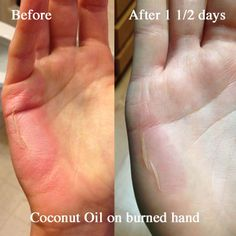 Coconut Oil for Burns. Take it from someone who is a klutz with heated implements of all kinds.this really soothes and heals burns! Coconut Oil For Burns, Coconut Oil Uses, Coconut Oil For Skin, Essential Oil For Burns, Essential Oils, Cooking Oil Burn, 2nd Degree Burns Treatment, Home Remedies For Burns, Burn Relief