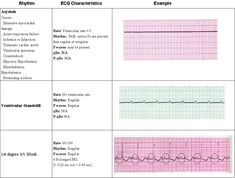 ACLS Study Guide - Virb