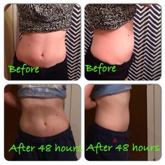 Good Morning! Checkout my friend's wrap results after 48 hours! #amazing #letmewrapyou #beforeandafter #results #kywraps