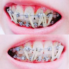 Braces Problems, Braces Girls, Dental Braces, Rubber Bands, Beautiful Smile, Headgear, Silver, Orthodontics, Money