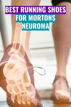 Best Running Shoes for Mortons Neuroma in 2020 Best Running Shoes, Running Gear, Running Workouts, Workout Gear, Half Marathon Training, Marathon Running, Sore Calves, Morton's Neuroma, Wide Shoes