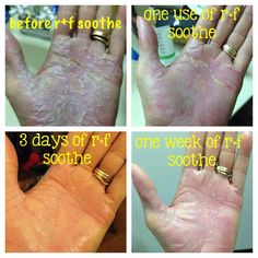 1 week using soothe for Psoriasis